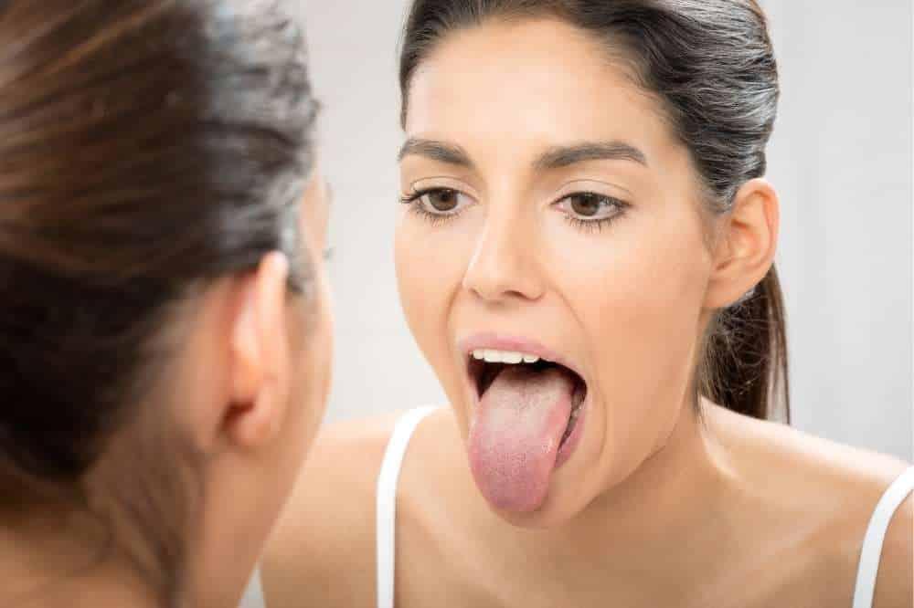 Candida Symptome - weißer Belag auf der Zunge
